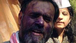 योगेंद्र यादव के चेहरे पर स्याही